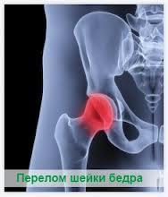 Переломы шейки бедренной кости